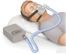 220px-CPAP